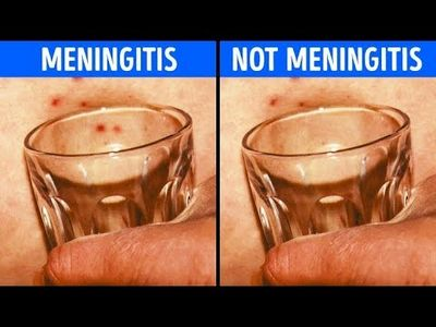 Do You Have Meningitis Symptoms?