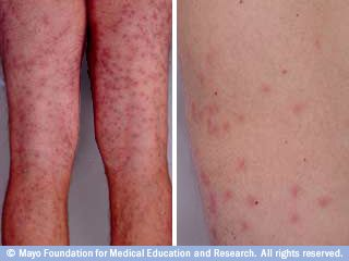 Skin Rashes And The Five Most Common Causes