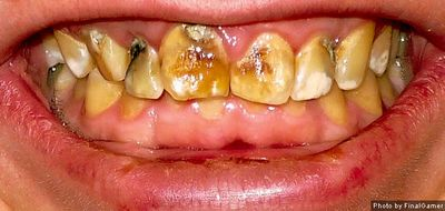 What Does Fluoride Have to Do With Dental Health?