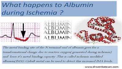What Is Albuminuria?