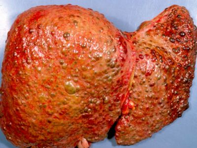 What is Wilson's Disease and How it Can Affect Your Liver
